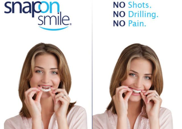 Răng giả Snap on smile